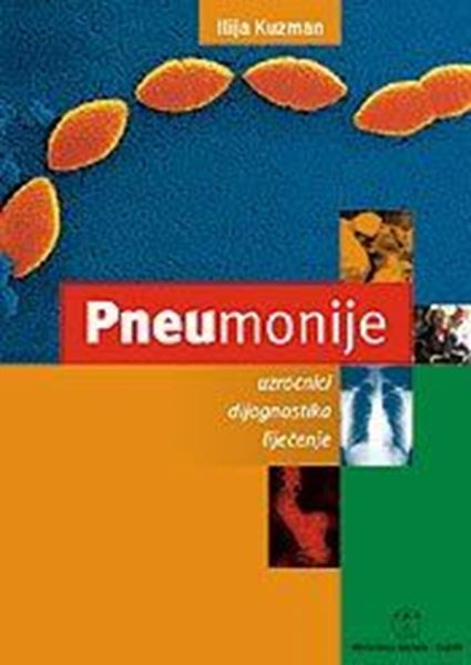 Picture of PNEUMONIJE