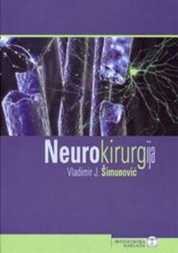 Picture of NEUROKIRURGIJA