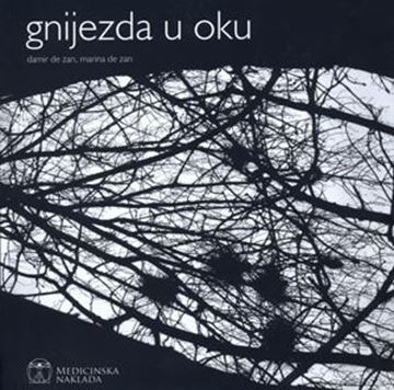 Picture of GNIJEZDA U OKU