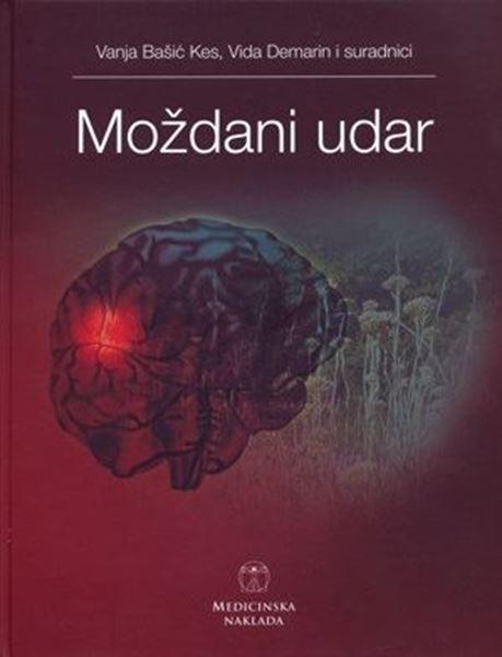 Picture of MOŽDANI UDAR
