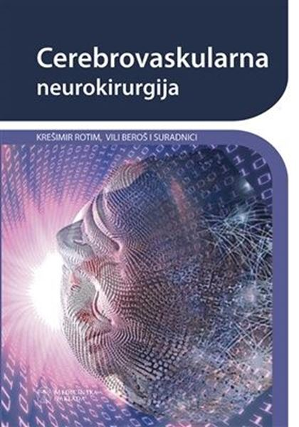 Picture of CEREBROVASKULARNA NEUROKIRURGIJA