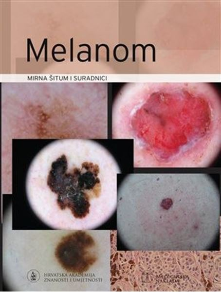Picture of MELANOM