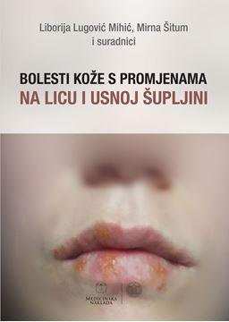 Picture of BOLESTI KOŽE S PROMJENAMA NA LICU I USNOJ ŠUPLJINI