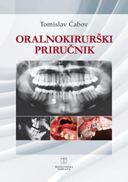Picture of ORALNOKIRURŠKI PRIRUČNIK
